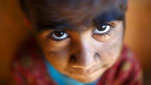 ¡Alarma en España! 14 niños desarrollaron el Síndrome del Hombre Lobo