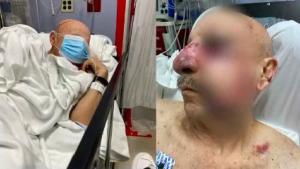 Golpearon brutalmente a un anciano en el Metromover de Miami