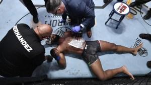 Lo que reveló la radiografía de un luchador de UFC tras sufrir una severa fractura durante pelea (Foto)