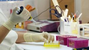 ¿Qué es VEXAS? Síntomas de la nueva enfermedad mortal que solo afecta a hombres