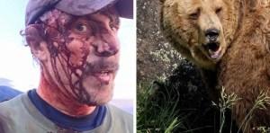 Dolor, desesperación y segundos eternos: El relato de un hombre que sobrevivió a dos ataques de un oso, el mismo día